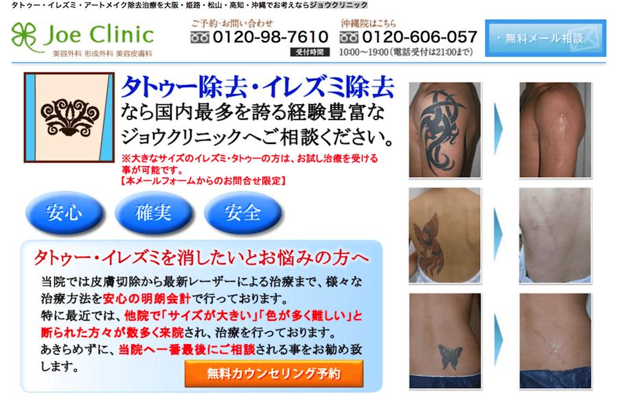 タトゥー除去手術が可能なクリニック